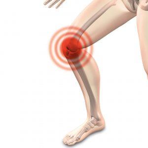 כאבי ברכיים – איך מטפלים בזה